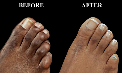 A before and after of a hammer toe surgery in Chicago, IL
