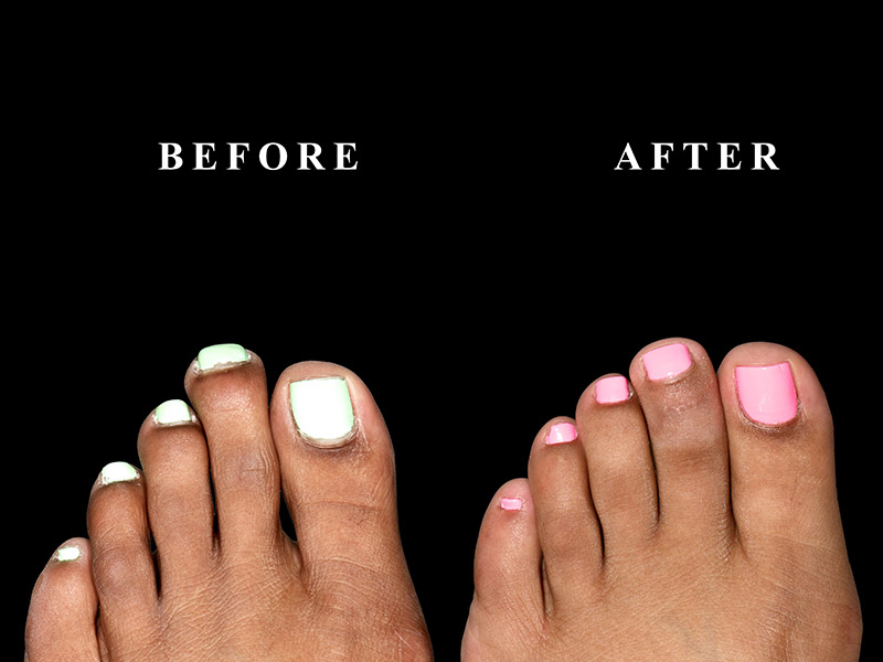 Before and after a toe straightening surgery in Chicago, IL