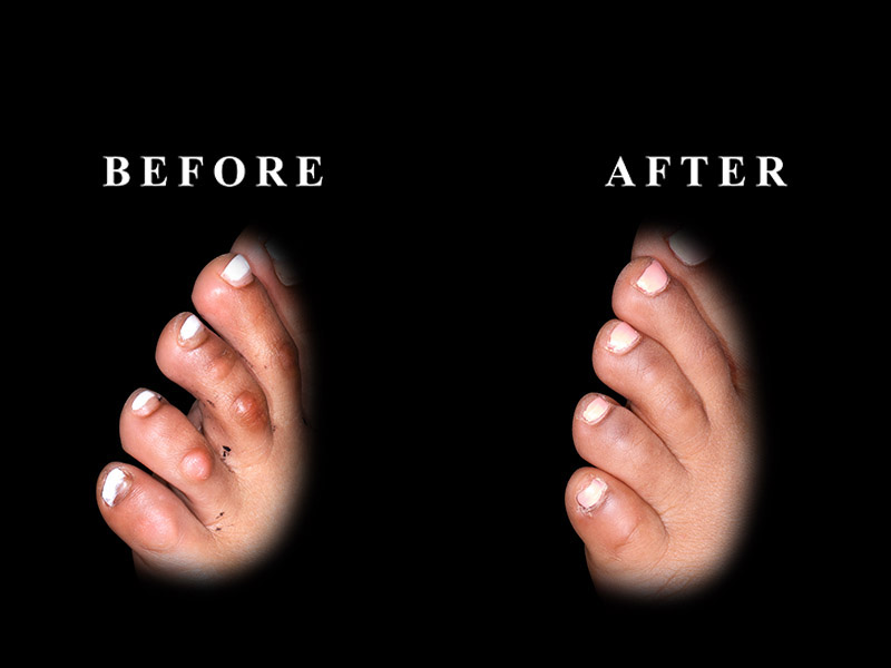 Before and after cosmetic toe surgery in Chicago, IL