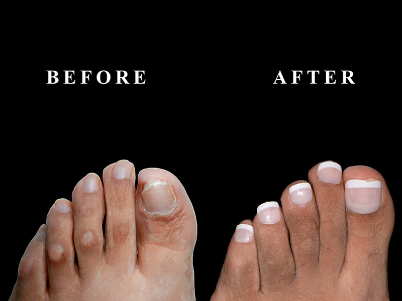 Before and after a toe shortening surgery in Chicago, IL