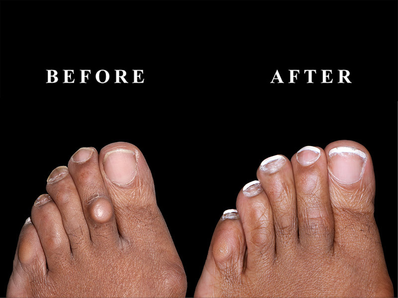 A before and after picture of a client's toes after corn removal surgery near Chicago, IL