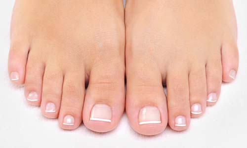 Hammertoe Correction